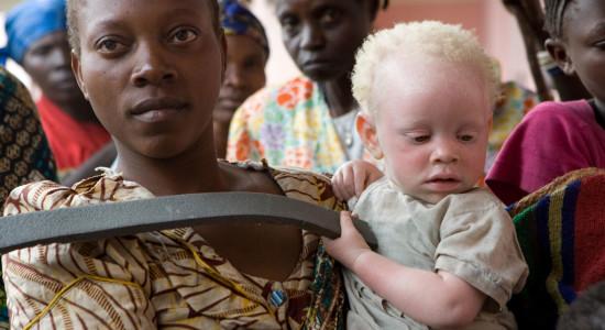 MONUC-Albinism